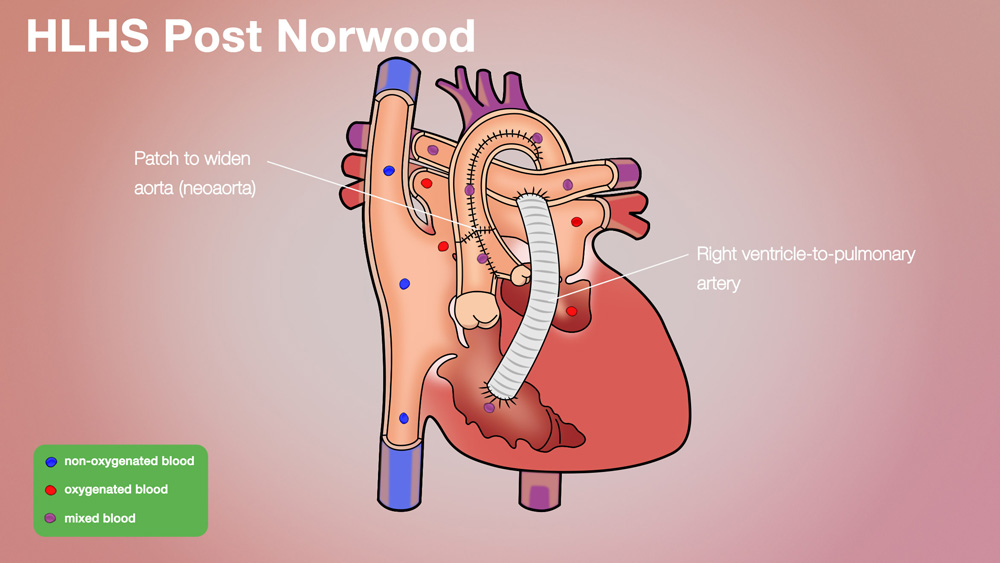 HLHS Post-Norwood Anatomical Heart