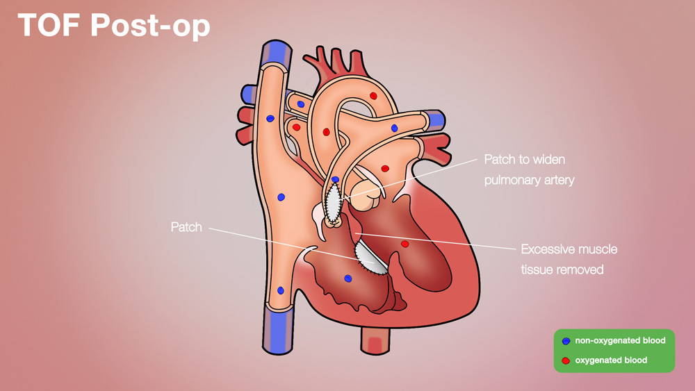 TOF Post-op Anatomical Heart